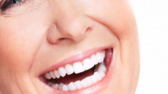 1-implants (1)