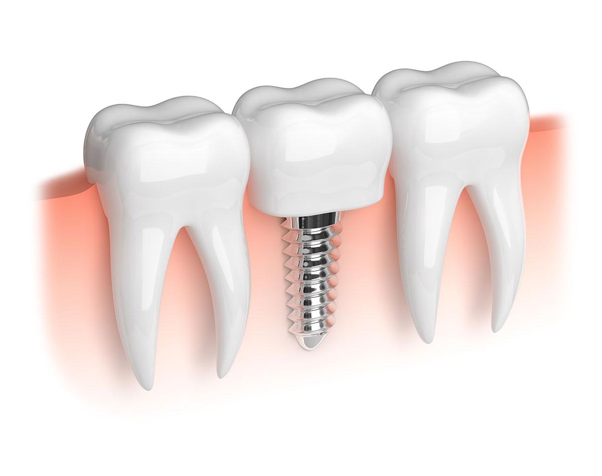 implantnew2
