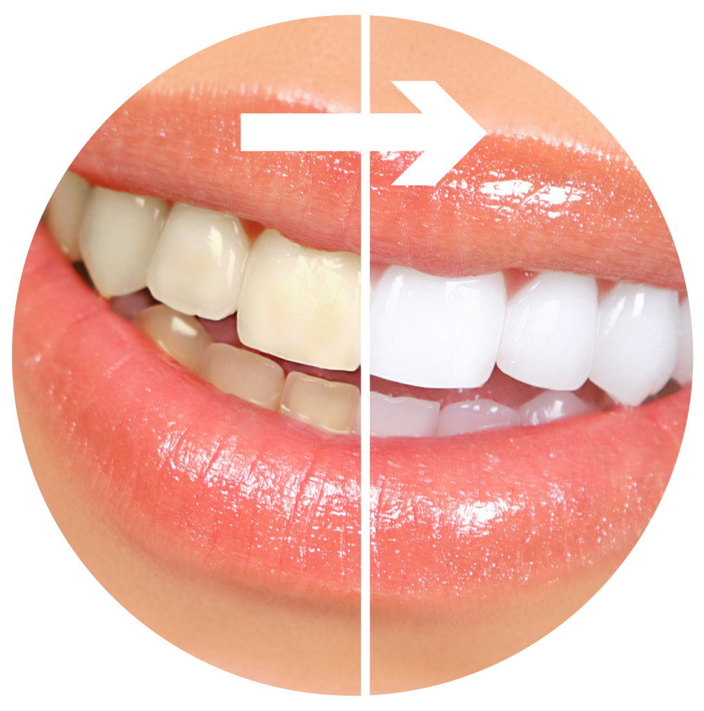 kisspng-tooth-whitening-cosmetic-dentistry-human-tooth-a-white-teeth-5b326b3cb211f0.0039610315300309087294