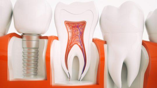 Implant articol